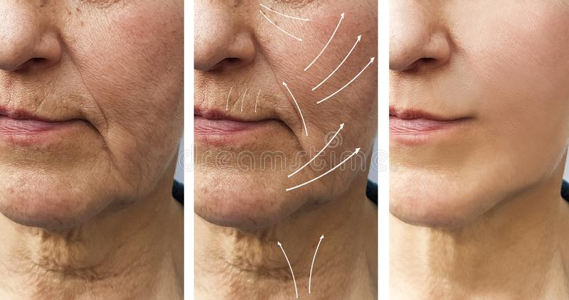 Frauenältere Gesichtsfalten, die Füllertherapie Cosmetologyregeneration vor und nach Verfahrenspfeil anheben lizenzfreie stockfotos