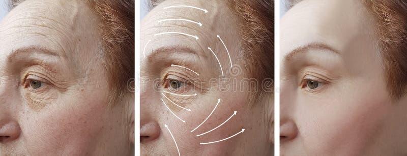 Frauenältere Gesichtsfalten, die Korrekturtherapie Cosmetologyregeneration vor und nach Verfahrenspfeil anheben stockfotos