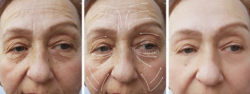 Frauenältere Gesichtsfalten, die Medizinkorrekturtherapie Cosmetologyregeneration vor und nach Verfahrenspfeil anheben stockfoto