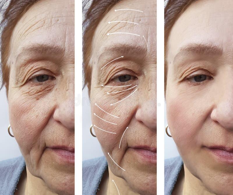 Frauenältere Gesichtsfalten, die Medizintherapie Cosmetologyregeneration vor und nach Verfahrenspfeil anheben lizenzfreies stockfoto