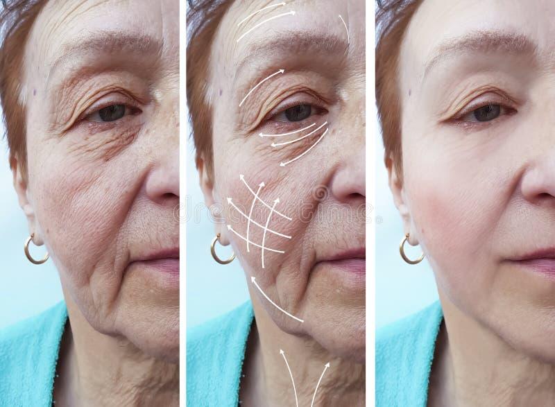 Frauenältere Gesichtsfalten-Korrekturregeneration vor und nach Verfahrenspfeil stockfoto