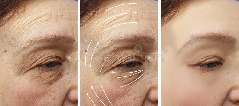 Frauenältere Gesichtsfaltenkorrektur Cosmetologyregeneration vor und nach Verfahrenspfeil stockfoto