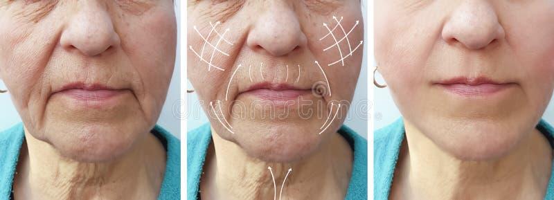 Frauenältere Gesichtsfaltenkorrektur vor und nach Verfahrenspfeil stockfotografie