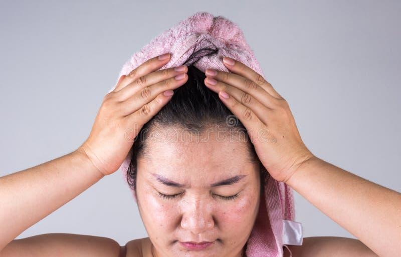 Frauen mit Haarausfallproblemen zeigen einige Haarprobleme an stockbilder