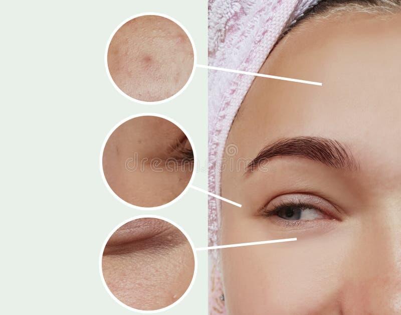 Frauenaugenfalten, die Dermatologieeffektkorrekturtherapie-Konzeptkontrast vor und nach Collage aufblasen stockfoto