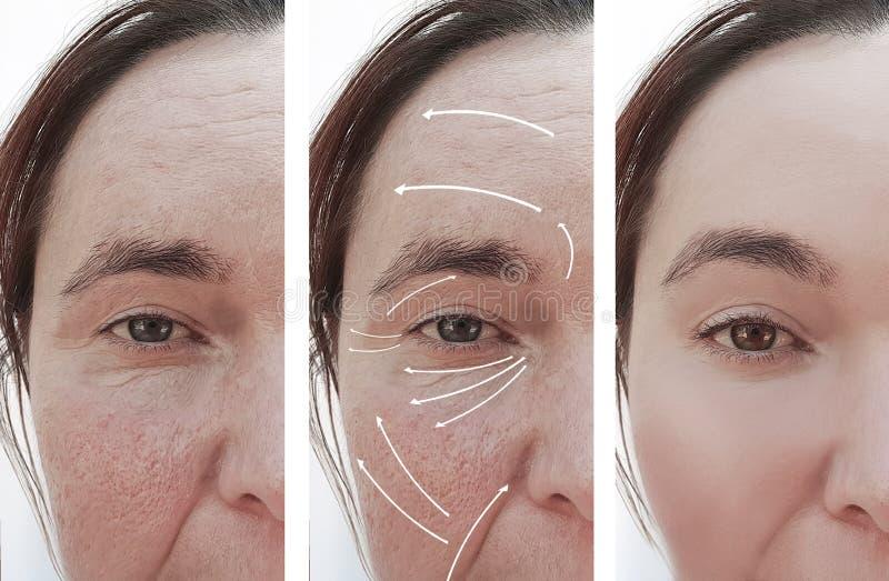 Frauenfalten stellen rosacea vor und nach Unterschied Cosmetology-Therapiekorrektur, Pfeil gegenüber stockfotos