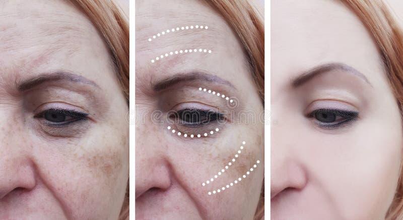 Frauenfalten, vor und nach dem Anheben von reifen Behandlungsverfahren, heben Cosmetologyeffektbehandlungen an stockbilder