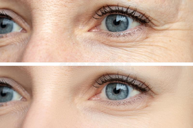 Frauengesicht, Augenfalten vor und nach Behandlung - das Ergebnis des Verjüngens von cosmetological Verfahren von biorevitalizati stockfotos