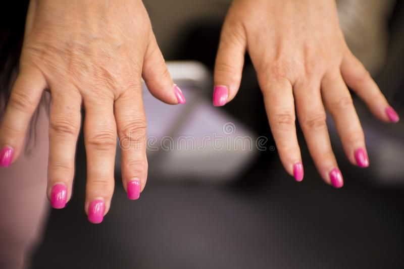 Frauenhände mit Rheumatismusarthritis- und -hautverunstaltungen lizenzfreies stockfoto