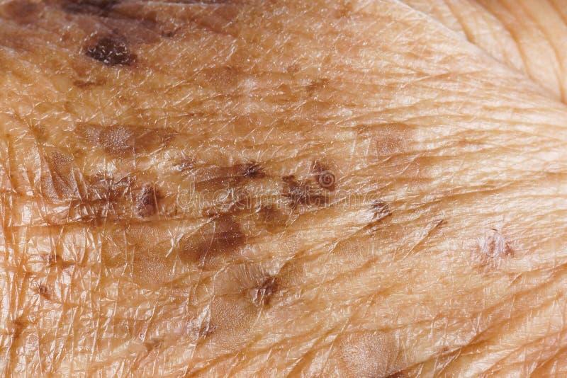 freckle royalty-vrije stock foto's