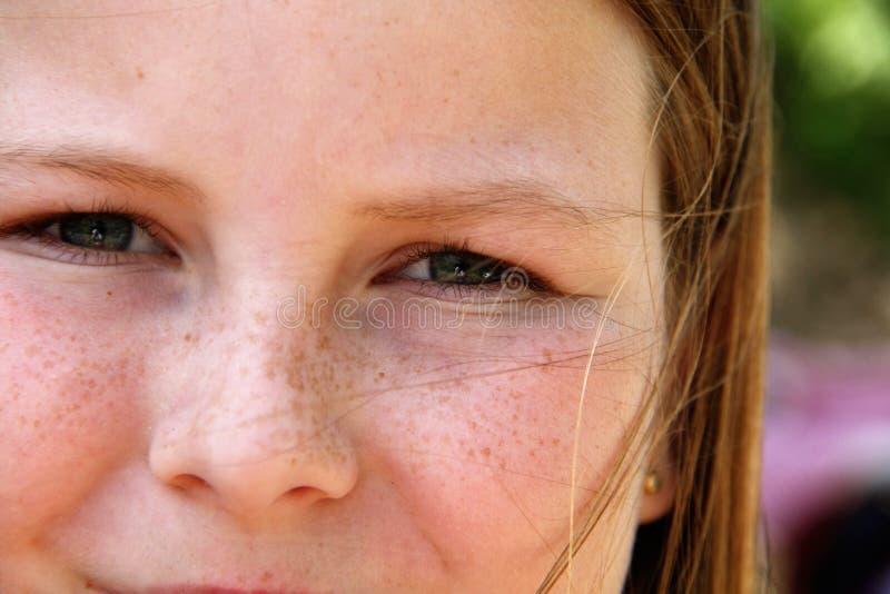 Freckled wangen van een meisje royalty-vrije stock fotografie