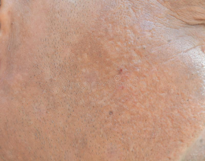 Freckles on the face and Dark spots and wrinkles. And face problems royalty free stock photos