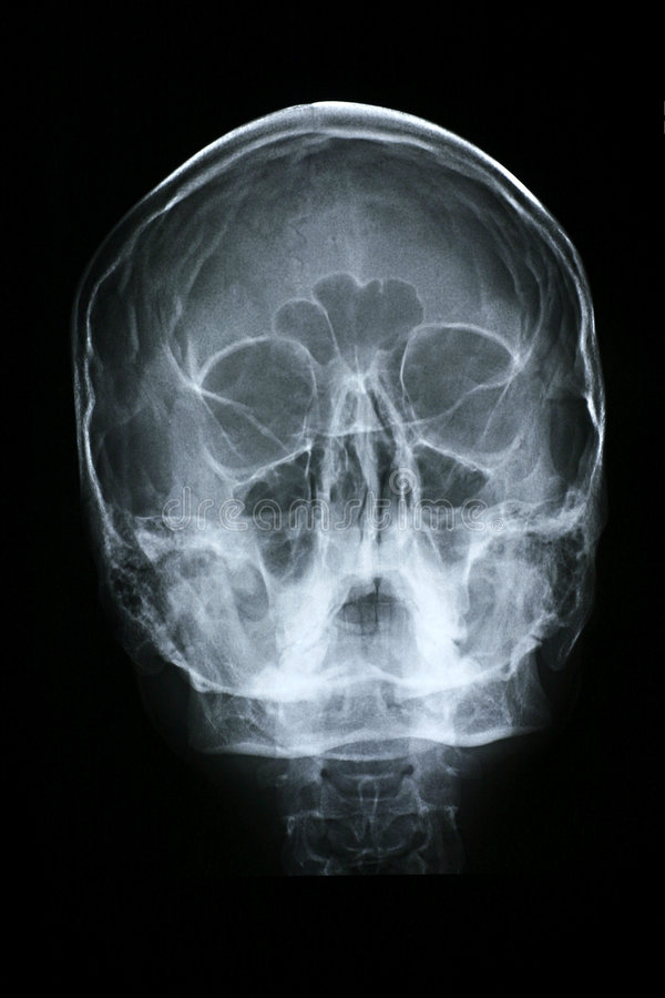 Frente de la radiografía/de la cara fotos de archivo libres de regalías