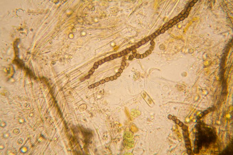 Pond water plankton and algae at the microscope. Nostoc commune. Fresh pond water plankton and algae at the microscope. Nostoc commune royalty free stock photography