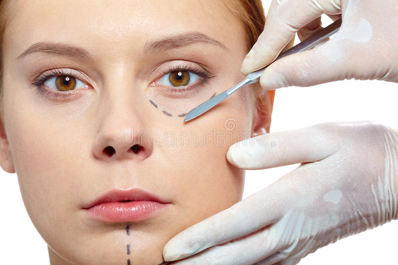 Aesthetic surgery. Fresh woman with marks drawn on face before plastic operation royalty free stock photos