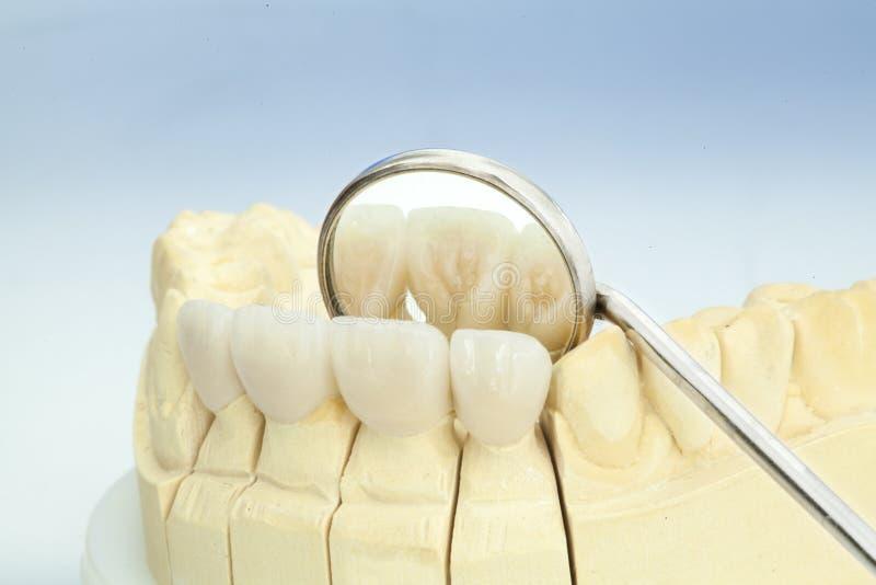 Fria keramiska tand- kronor för metall royaltyfri fotografi