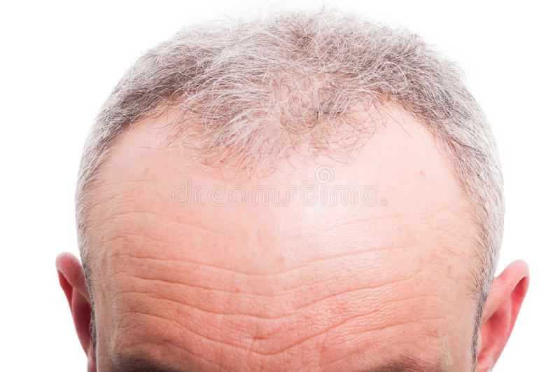 Front hair loss as male medical problem concept. On white background stock photography