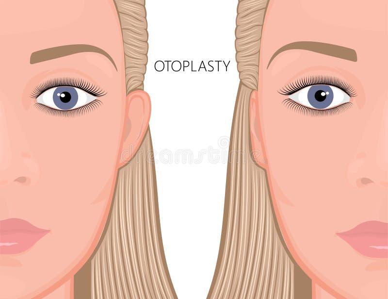 Front_Otoplasty framsida royaltyfri illustrationer