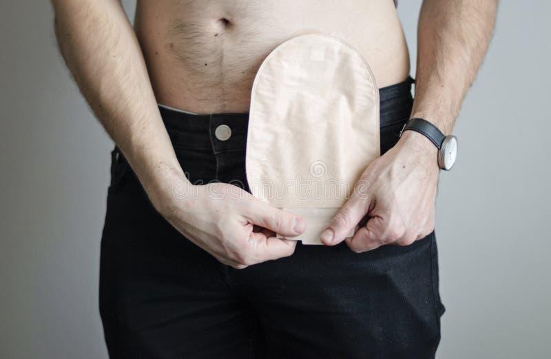 selectați semnele specifice viermilor senzație de arsură în uretra cu condiloame