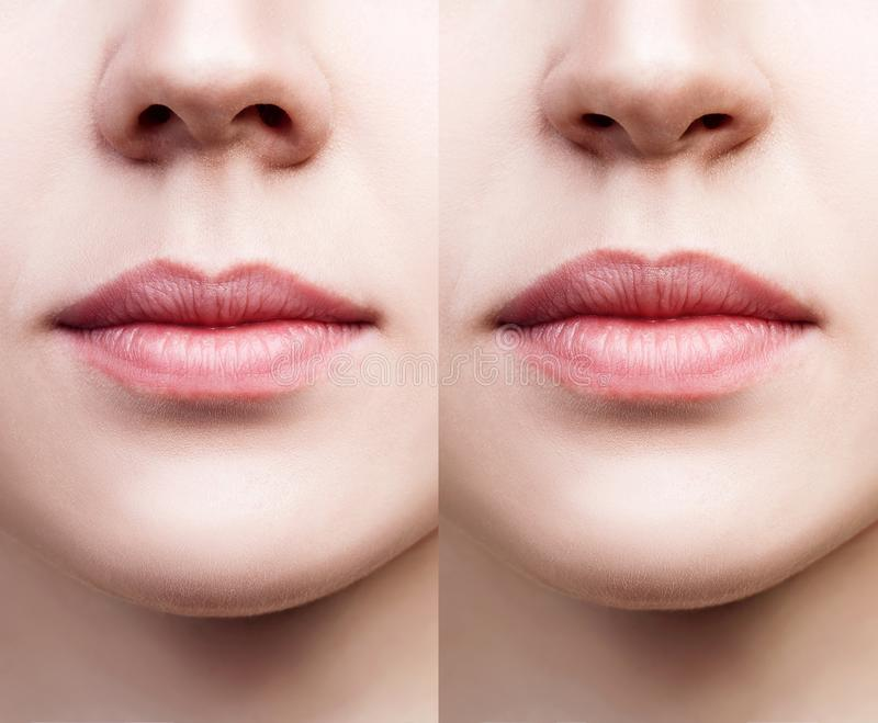 Front view on female nose before and after surgery. royalty free stock photography