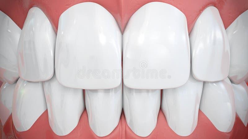 Frontal sikt på mousserande vita föregående tänder arkivbild