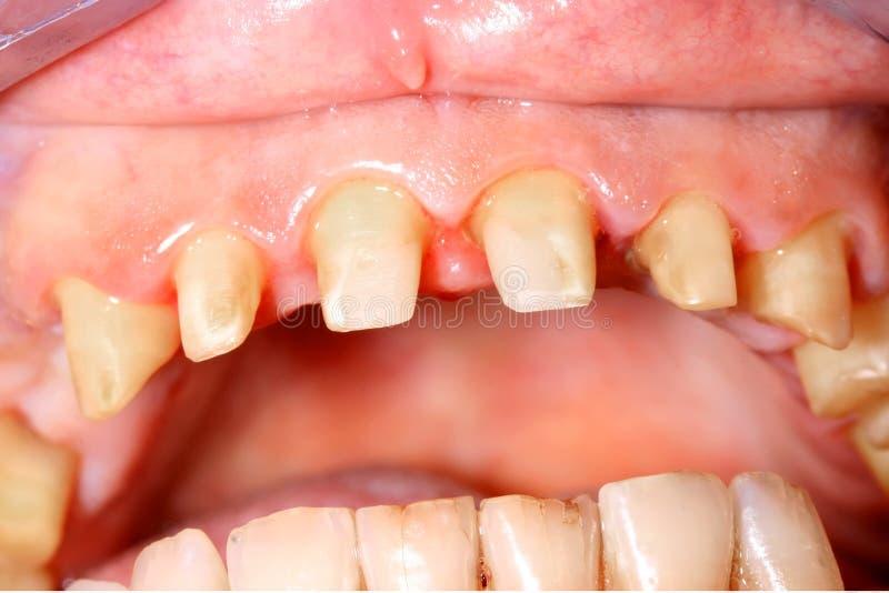 Download Frontal teeth stock photo. Image of health, pathology - 28494694