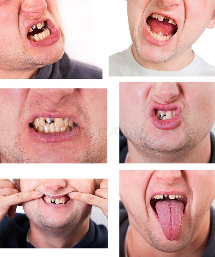 Fronte del giovane con il dente rotto fotografie stock