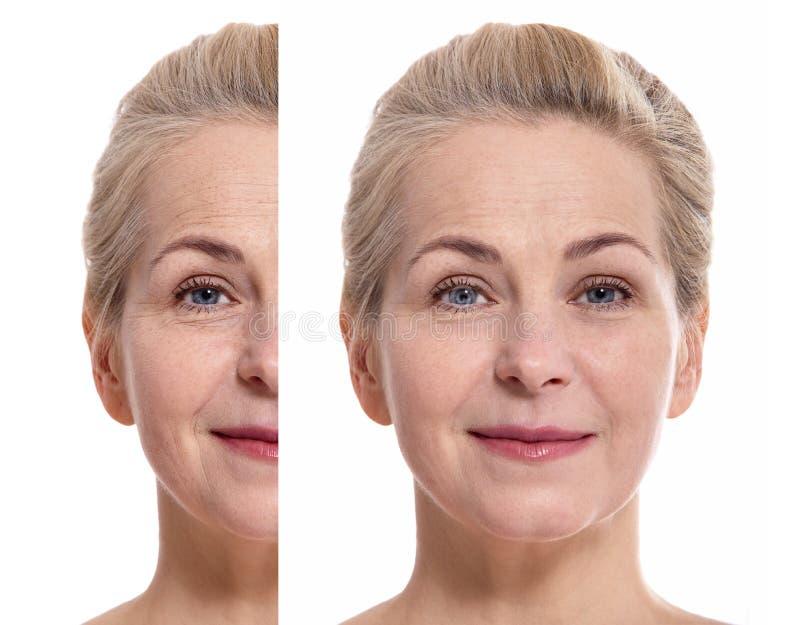 Fronte della donna invecchiato mezzo prima e dopo la procedura cosmetica Concetto della chirurgia plastica immagini stock libere da diritti