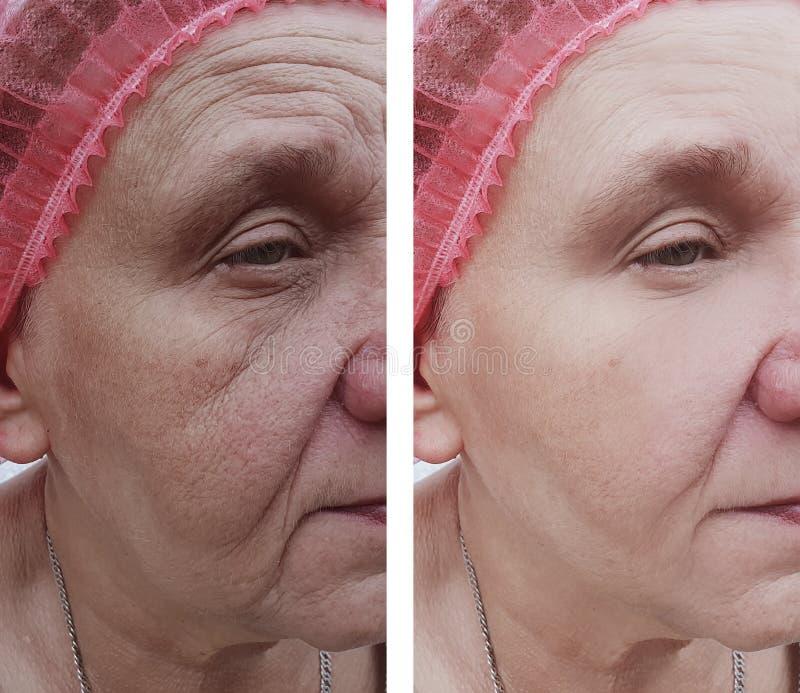 Fronte di una donna più anziana prima e dopo i trattamenti immagine stock