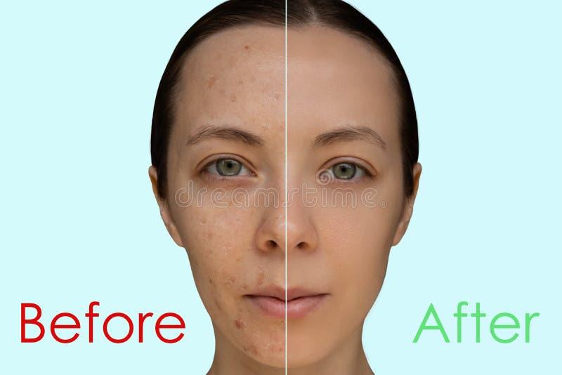 Fronte di una ragazza dopo una procedura cosmetica del primo piano di pelatura chimico immagini stock libere da diritti