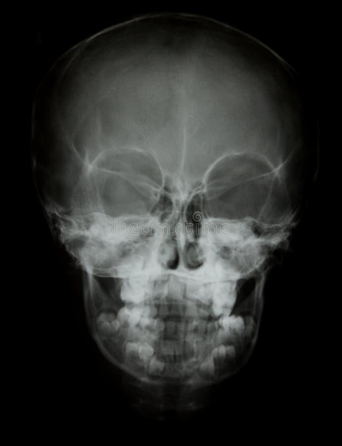 Frontowy twarzy czaszki promieniowania rentgenowskiego wizerunek zdjęcia stock