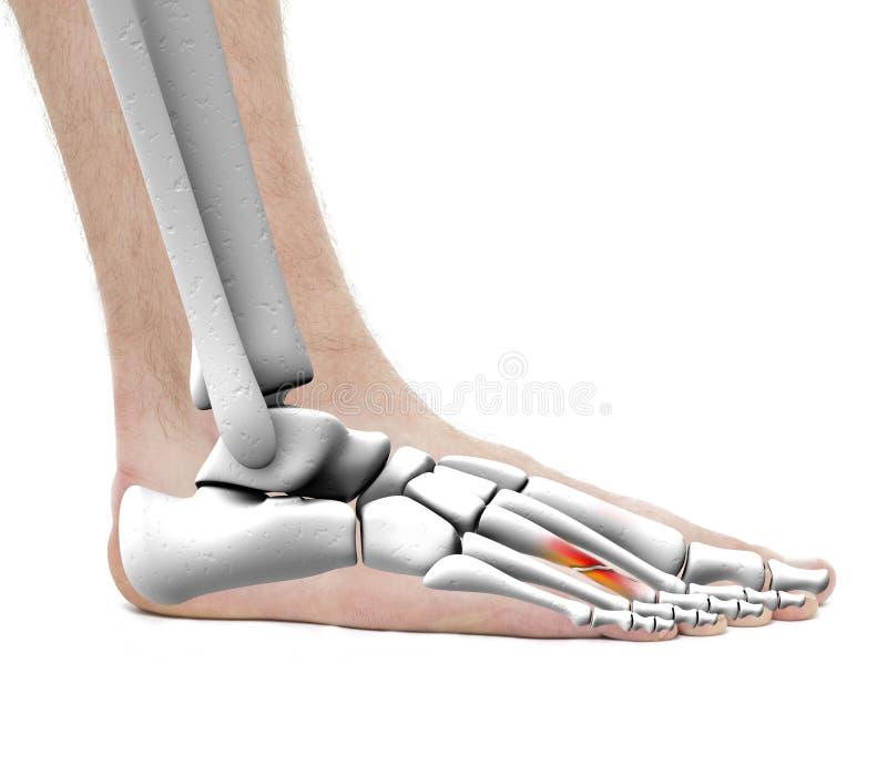 Fuß-Bruch Metatarsals-Knochen - Anatomie-Mann - Studiofotoisolator ...