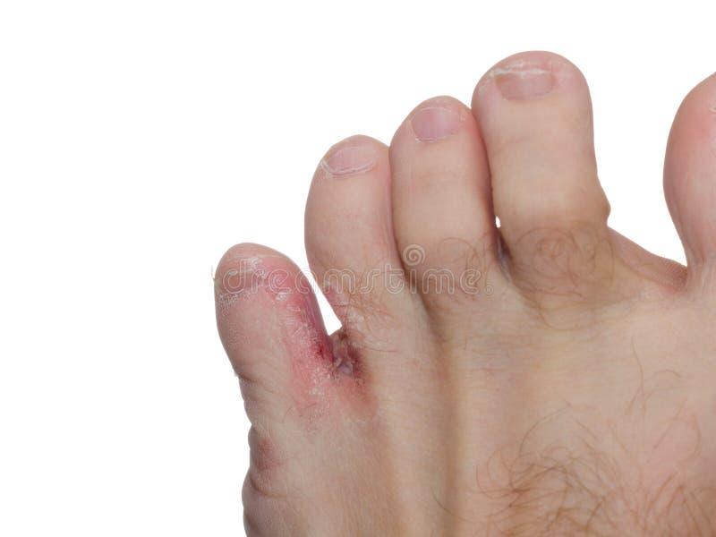 Fuß des Athleten (Tinea pedis) lizenzfreies stockfoto