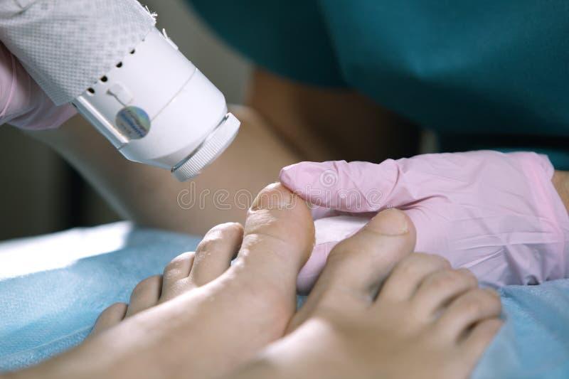 Fußarzt, der onychomycosis mit einem Laser behandelt stockfotografie