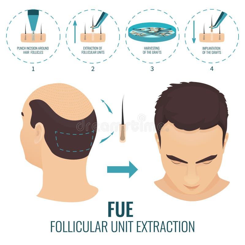 FUE-de behandeling van het haarverlies vector illustratie