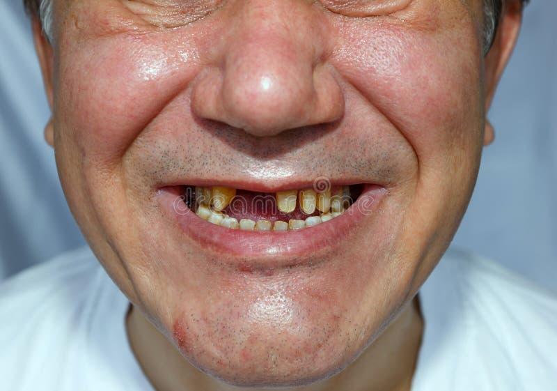 Ful man med den skalade tänder skrapade framsidan royaltyfri fotografi