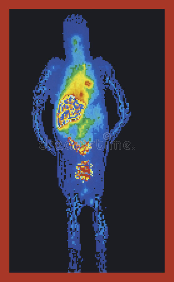 Full body medical scan royalty free stock image