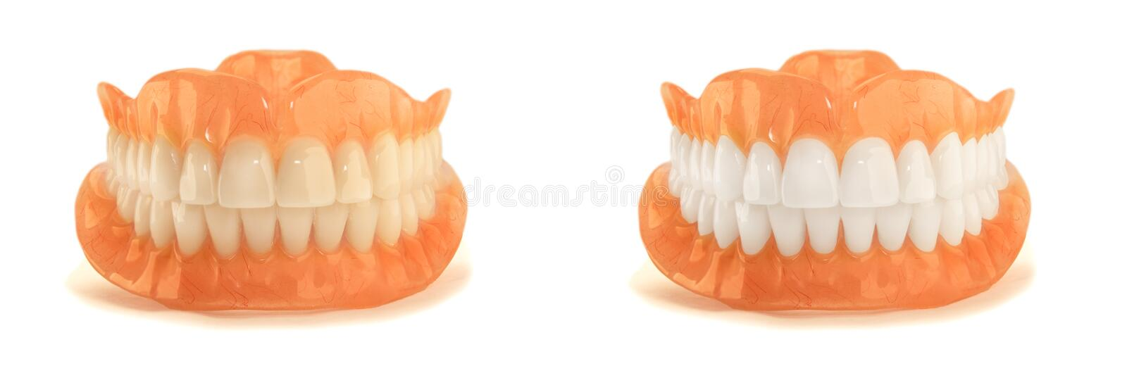 Full denture dentures close-up. Orthopedic dentistry with the us stock photos