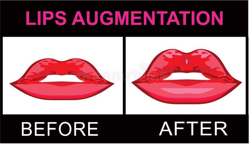 Full lips logo. Lips augmentation logo red lipstick royalty free illustration