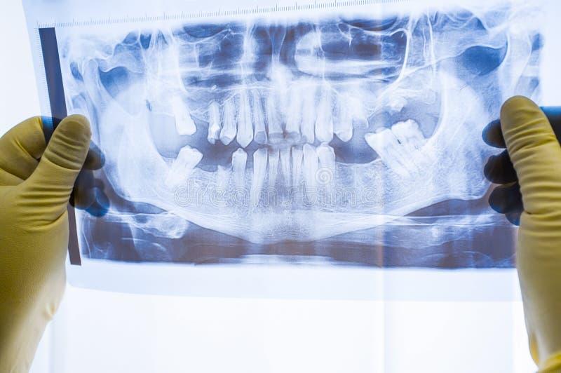 Full mun som är panorama- i röntgenstrålen som visar alla tänder arkivbilder