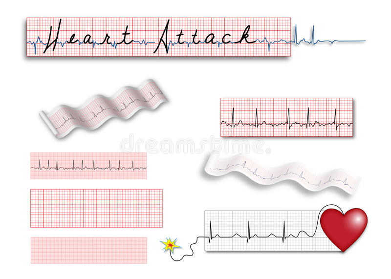 Full Page Ekg Strips With Heart Attack Title Stock Vector