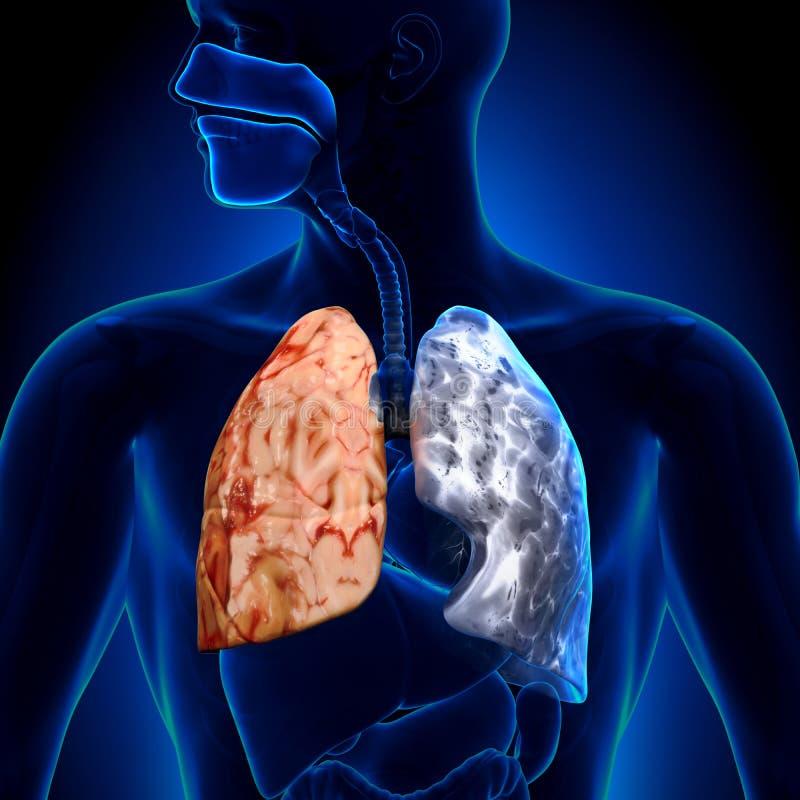 Fumatore contro il non-fumatore - anatomia dei polmoni illustrazione vettoriale