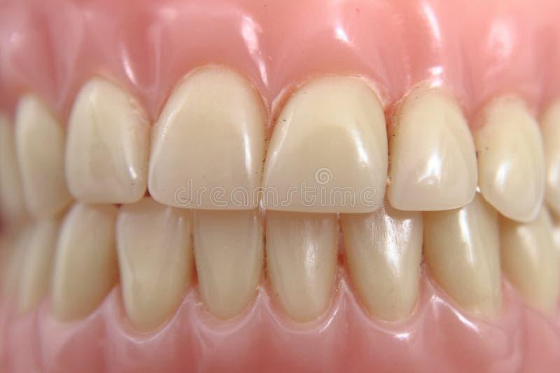 Fundo da prótese dos dentes imagem de stock