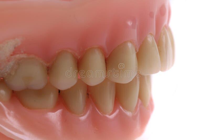 fundo do prothesis dos dentes imagem de stock royalty free