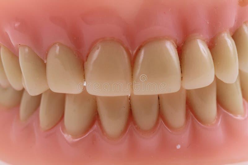 fundo do prothesis dos dentes fotografia de stock