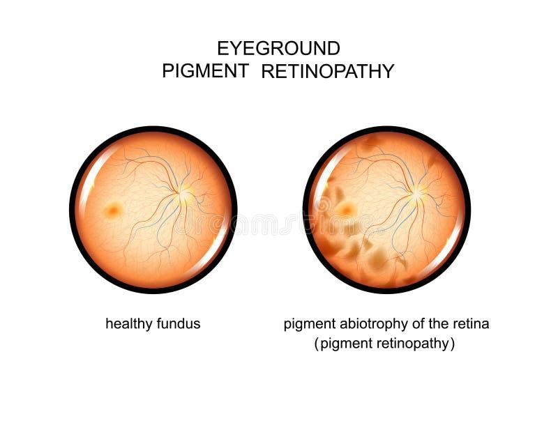 Fundus pigmentu retinopathy ilustracja wektor