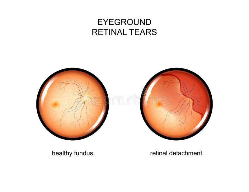 Fundus siatkówkowe łzy ilustracji