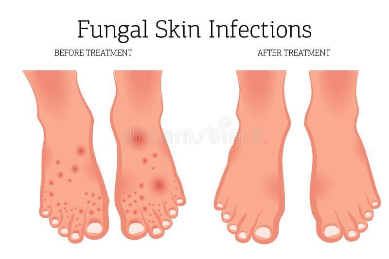 Fungal choroby skóra cieki royalty ilustracja