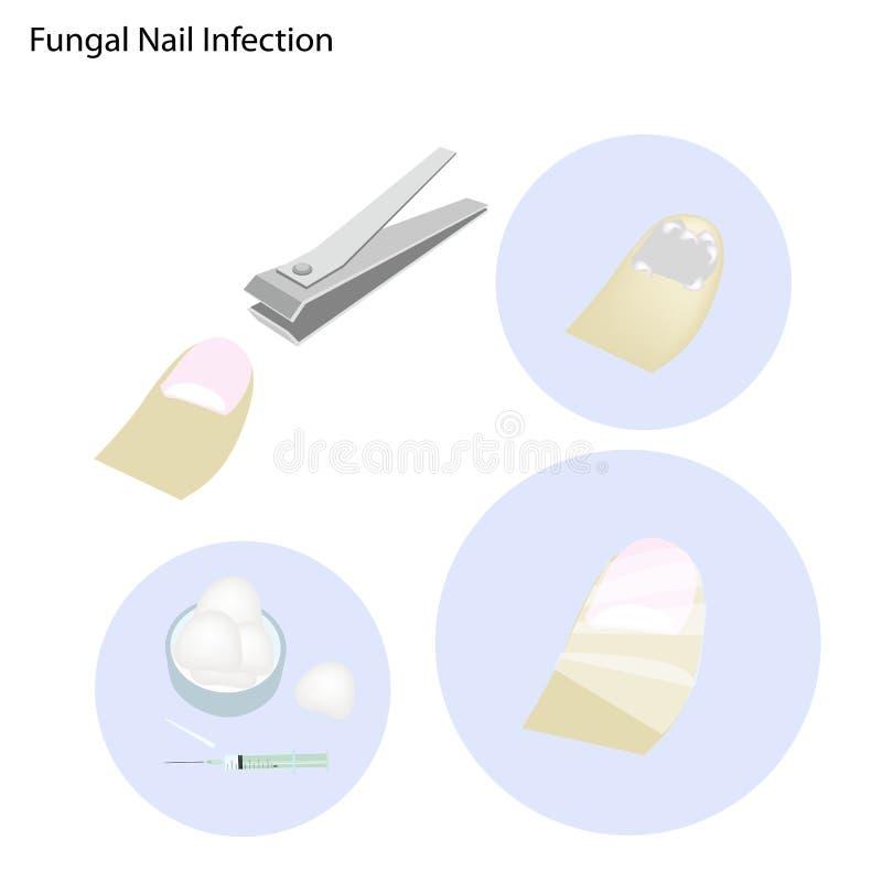 Fungal gwóźdź infekcja i Bierze opiekę ilustracji