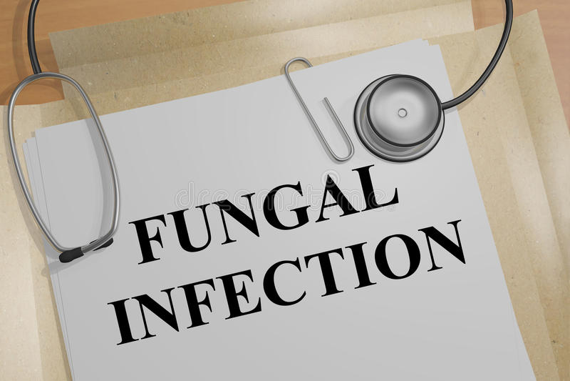 Fungal infekcja - medyczny pojęcie ilustracja wektor